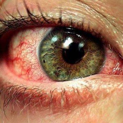 bloeduitstorting in oog